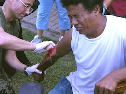 SEWON, Indonesia (May, 31, 2006) ? Navy Chief Petty Officer Ron Snyder scours a scabbed over burn to avoid infection on Indonesian ?Samadi?s? arm at a clinic established here today by III Marine Expeditionary Force Marines and sailors. The 46-year-old Indonesian received the burn along most of his right arm while pulling two young boys from a burning building that had collapsed during the May 27 earthquake that rocked the island of Java. The team of about 100 Okinawa-based service members is providing surgical and acute care for victims here at the request of the Indonesian government. (Official U.S. Marine Corps photo by 1st Lt. Eric C. Tausch).
