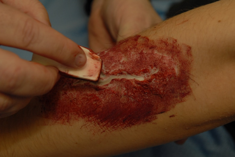 Extreme close up of a faked wound on the arm of Airman 1st Class Ryan Yeckering in preparation for the natural disaster exercise on Goodfellow Air Force Base March 13. (U.S. Air Force photo by Tech. Sgt. Randy Mallard)