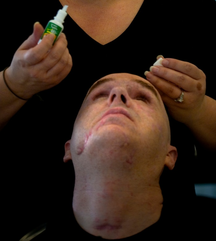 Annette has become somewhat of an expert at putting drops in her husband's eye after having to do so for at least every hour 24 hours a day, for four weeks straight.(photo by Tech. Sgt. Matthew Hannen)