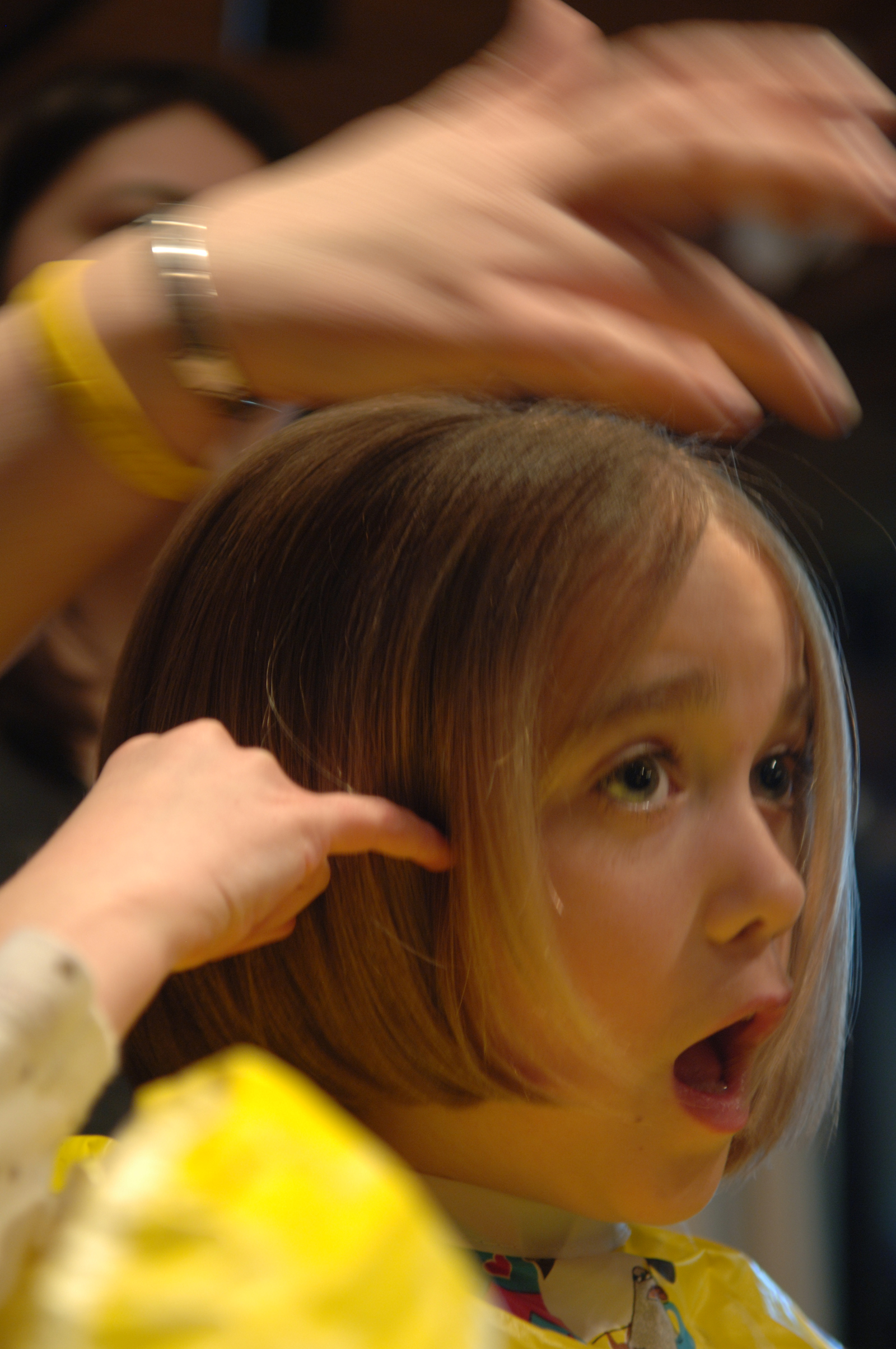 Image result for Causes Of Hair Loss In Children
