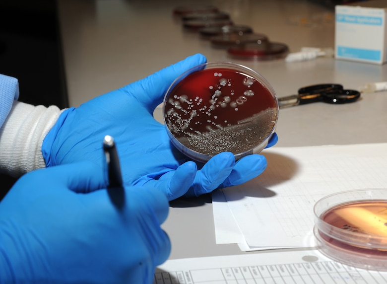 ELMENDORF AIR FORCE BASE, Alaska-- Bacterial testing is used for a variety of reasons including urine samples, blood samples and throat swabs.These colonies can grow as fast as 12 to 24 hours (U.S. Air Force photo by Airman First Class Kristin High)