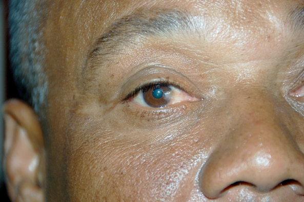 A patient with pterygiums, a condition where the white part of the eye begins to grow over the cornea and eventually over the pupil, and cataracts, which cause the pupils to appear cloudy receives optometric care from U.S. Air Force medics at a primary school in Hostos, Dom. Rep., April 22 during the largest Maxwell Air Force Base-planned U.S. Air Force Medical Readiness Training Exercise (MEDRETE) to date. A group of 45 medics, translators, security and support personnel derived from the U.S. Air Force, Army and Marines provided dental, dermatologic, general medicine, optometric, pediatric, pharmacy and public health services. The medics treated approximately 4,000 patients during the first four days of the U.S. SOUTHCOM sponsored Beyond the Horizon 2009 – Caribbean. A MEDRETE is a U. S. Southern command-sponsored exercise designed to provide humanitarian assistance and free medical care to the people of the host nation, while providing an unparalleled training opportunity for U.S. and host nation forces. SOUTHCOM sponsors approximately 70 MEDRETEs per year. (U.S. Air Force Photo by Capt. Ben Sakrisson)