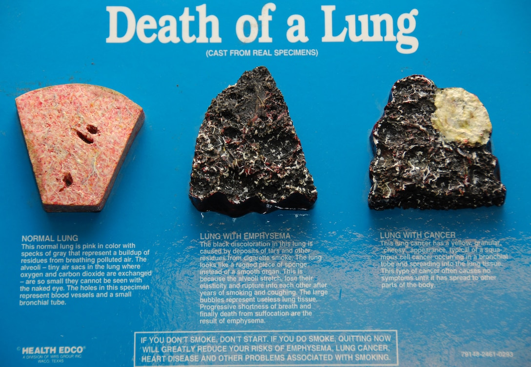 ANDERSEN AIR FORCE BASE, Guam – This model on display at the health and wellness center shows the difference between a normal lung, a lung stricken with emphysema and a cancerous lung. Prolonged tobacco usage leads to many health problems and places financial burdens on the user. (U.S. Air Force photo by Senior Airman Shane Dunaway)