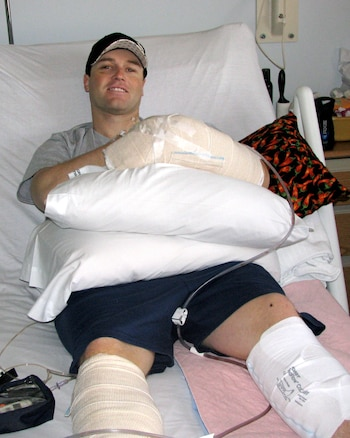 Staff Sgt. Jason Butterfield, an intelligence analyst with the 151st Operations Group Intelligence, in recovery February 2009 at Brooke Army Medical Center in San Antonio, Texas. Sergeant Butterfield suffered a left wrist and hand injury when riding in the turret of a Mine Resistant Ambush Protected (MRAP) vehicle, which rolled near Helmand province, Afghanistan Feb. 10, 2009.