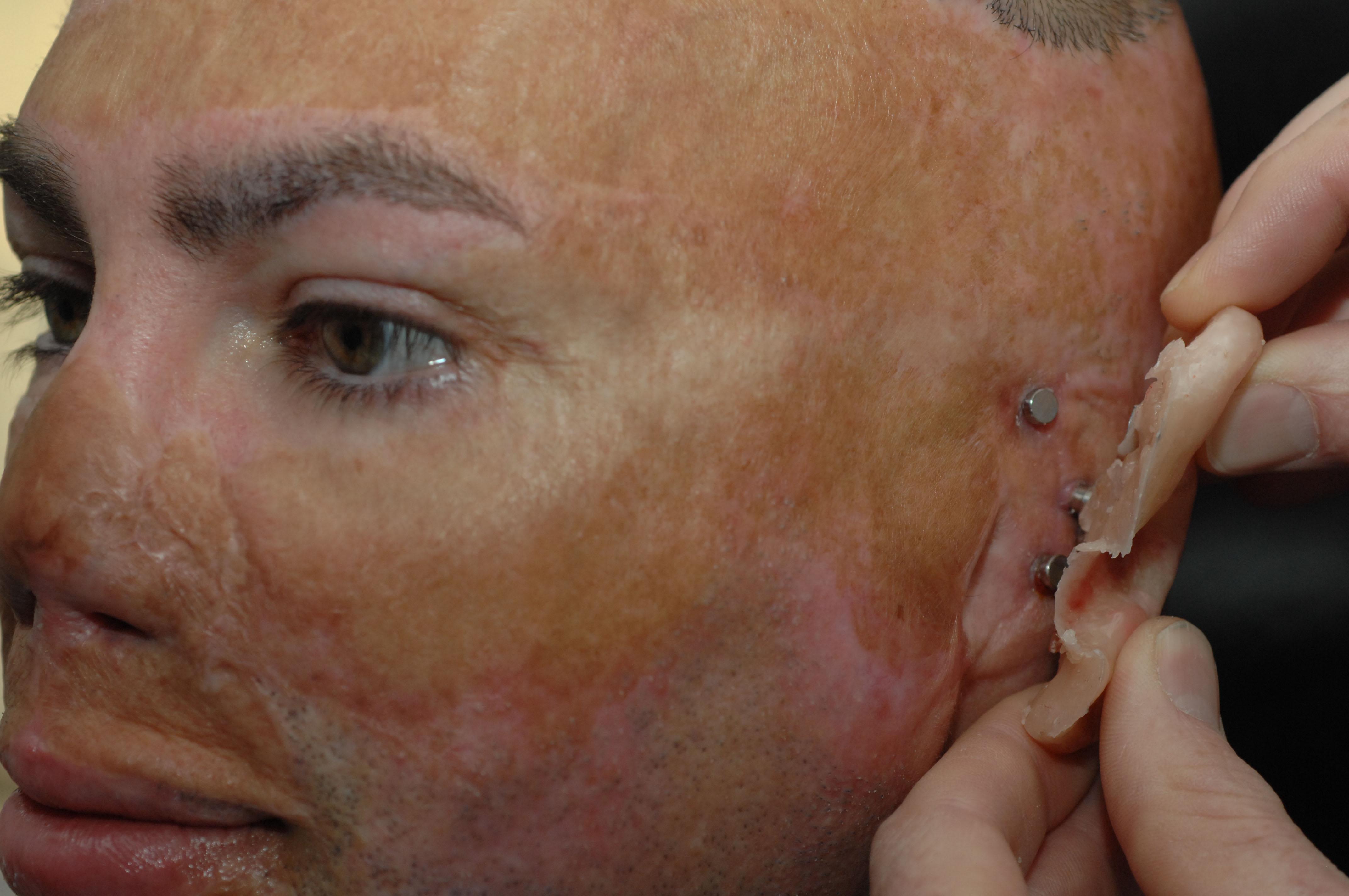Replacing Ear