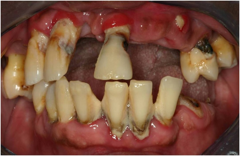 Tobacco use is directly linked to gum disease and can cause bad breath, stained teeth