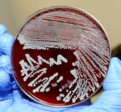 Staph bacteria growing on a culture plate. (U.S. Air Force photo/ Staff Sgt. Liliana Moreno)