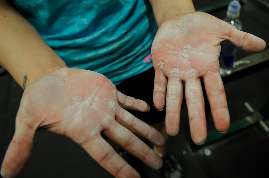 Staff Sgt. Samantha Scott, 509th Bomb Wing Command Post training manager, shows off her blisters formed during her weighted bar and pull-ups exercises during the K-State CrossFit Challenge in Manhattan, Kan., April 27, 2013. (U.S. Air Force photo by Staff Sgt. Alexandra M. Boutte/Released)