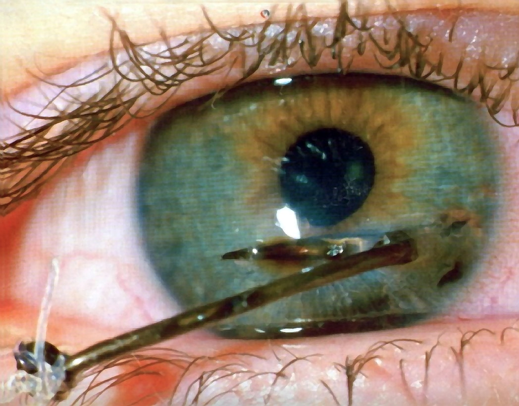 Many fishing hooks have barbs that make them difficult to remove if they embed in an eye. If you or a buddy do catch a hook in the eye, do not try to remove it yourself, as you may cause more damage. Tape the lure to your brow to keep its weight from tugging on your eyeball and get to the nearest hospital immediately. (Courtesy photo)