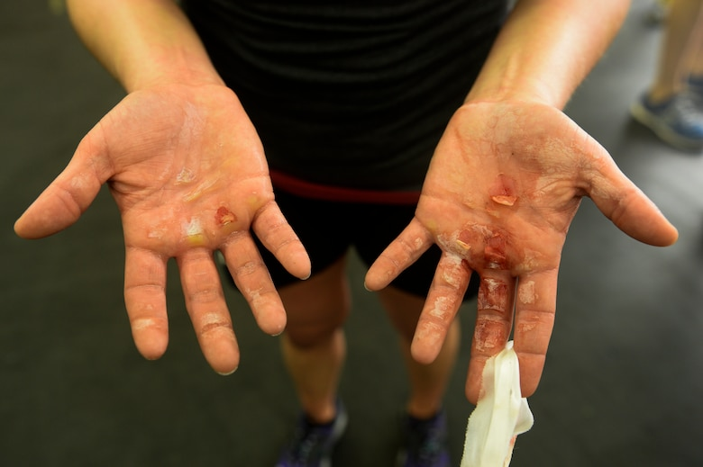 """Spangdahlem Airman displays her hands after completing a """"Murph"""" Challenge at Spangdahlem Air Base, Germany. The event is held annually to memorialize the actions of U.S. Navy Lt. Michael Murphy and all fallen heroes. (U.S. Air Force photo by Senior Airman Rusty Frank/Released)"""