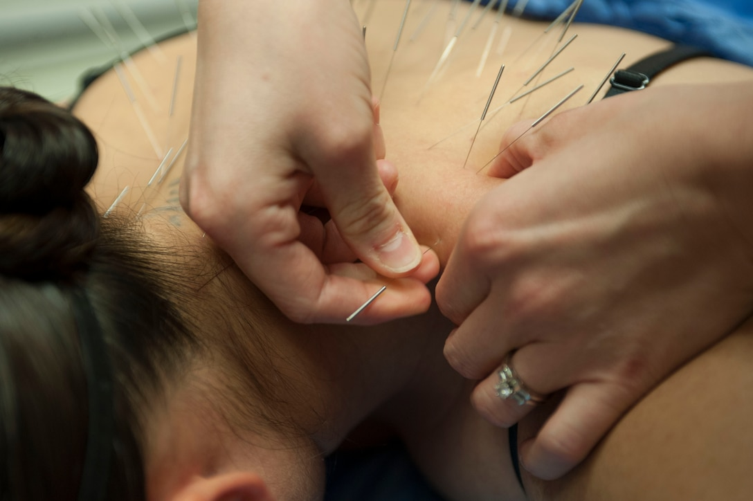 Airman 1st Class Tawni Deboma, 99th MDOS medical technician, has acupuncture needles inserted into her back at the Mike O' Callaghan Federal Medical Center on Nellis Air Force Base, Nev., Oct. 26, 2015. Most acupuncture needles are transient, meaning they are left in for about 20 to 30 minutes and then removed. Needles inserted into the ear can stay in for up to a week. (U.S. Air Force photo by Senior Airman Mikaley Kline)
