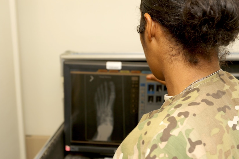 Spc. Dayanna Sanchez, a radiology specialist with the 53rd Head and Neck Surgical Team assigned at Camp Arifjan, Kuwait, and native of Havana, Cuba, examines an X-ray at the hospital on base June 28, 2016. Sanchez' hard work and dedication recently afforded her the opportunity to be the only female Soldier to participate in the USARCENT Soldier of the Year Competition.
