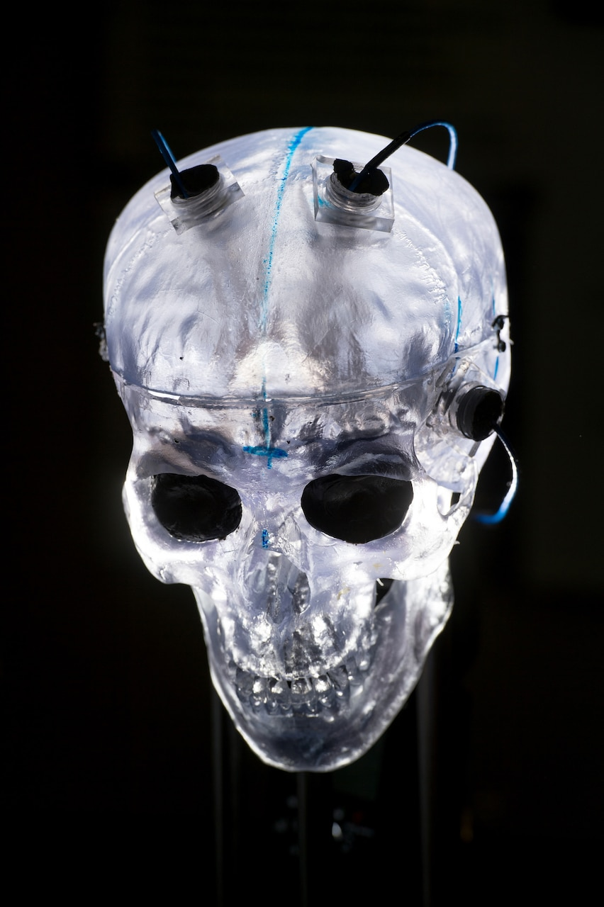 Sensors attached to a translucent model skull are used to measure explosive shock velocity and pressure at the Army Research Laboratory Weapons and Materials Research Directorate at Aberdeen Proving Ground in Aberdeen, Md., March 9, 2016. Data captured by the sensors are used to assist studies in traumatic brain injuries. DoD photo by EJ Hersom