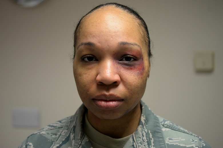 A volunteer from the 48th Logistics Readiness Squadron poses for a portrait at Royal Air Force Lakenheath, England, Oct. 21, after having a simulated bruise applied to her eye . The bruise was applied as part of this year's Black Eye Campaign, an event put on to raise awareness for domestic violence. (U.S. Air Force photo/Airman 1st Class Eli Chevalier)