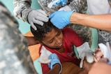 Members of the Joint Task Force-Bravo Medical Element team place two staples in the head of a young boy to stop the bleeding during a medical readiness training exercise, or MEDRETE, in the village of Bacadilla, Olancho district, Honduras, Sept. 22, 2016. MEDEL medics were able to quickly treat the boy who was playing outside the MEDRETE site and tripped while jumping across a ditch, striking his head on a sharp rock.