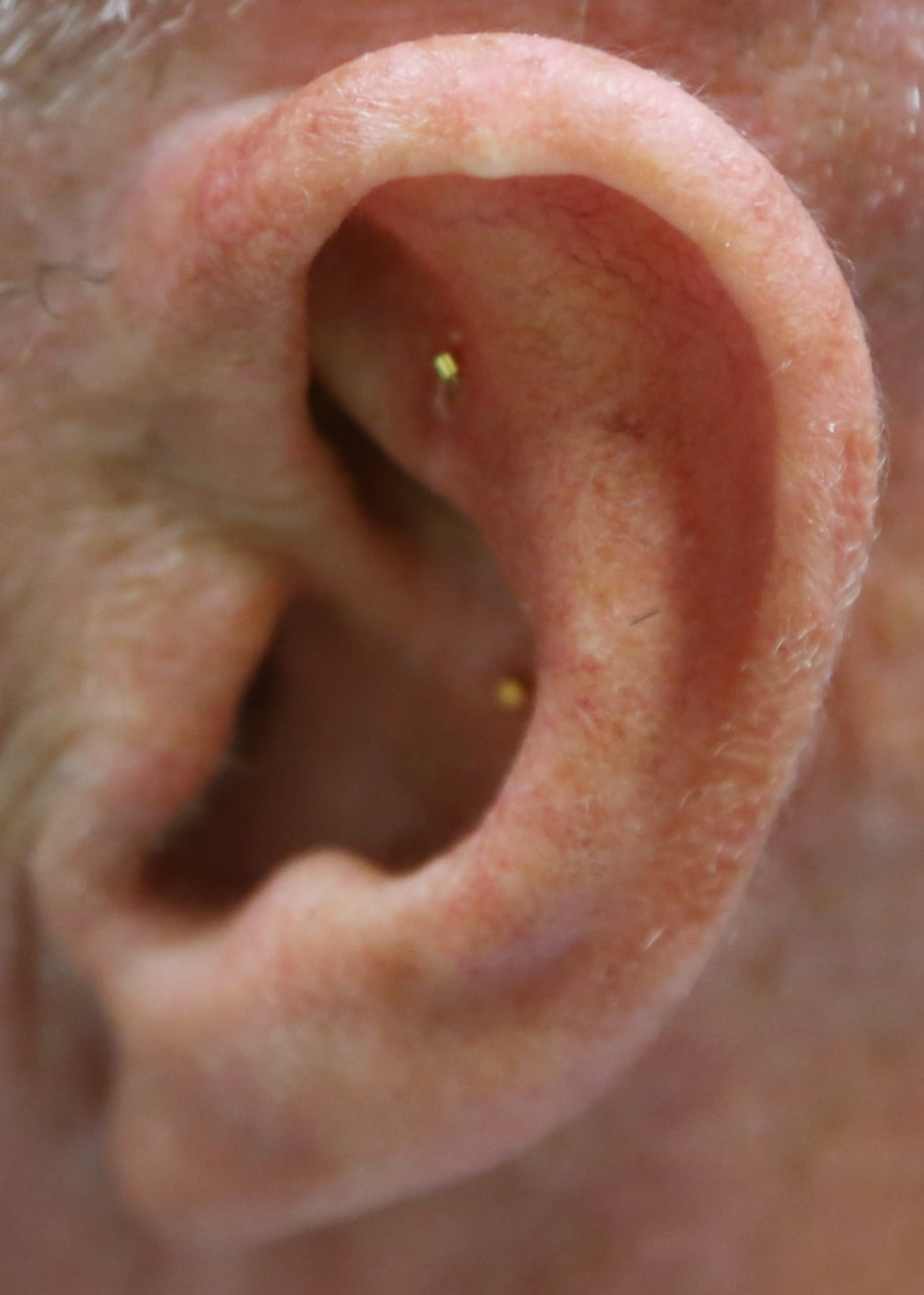 Battlefield acupuncture is a unique auricular (ear) acupuncture procedure.