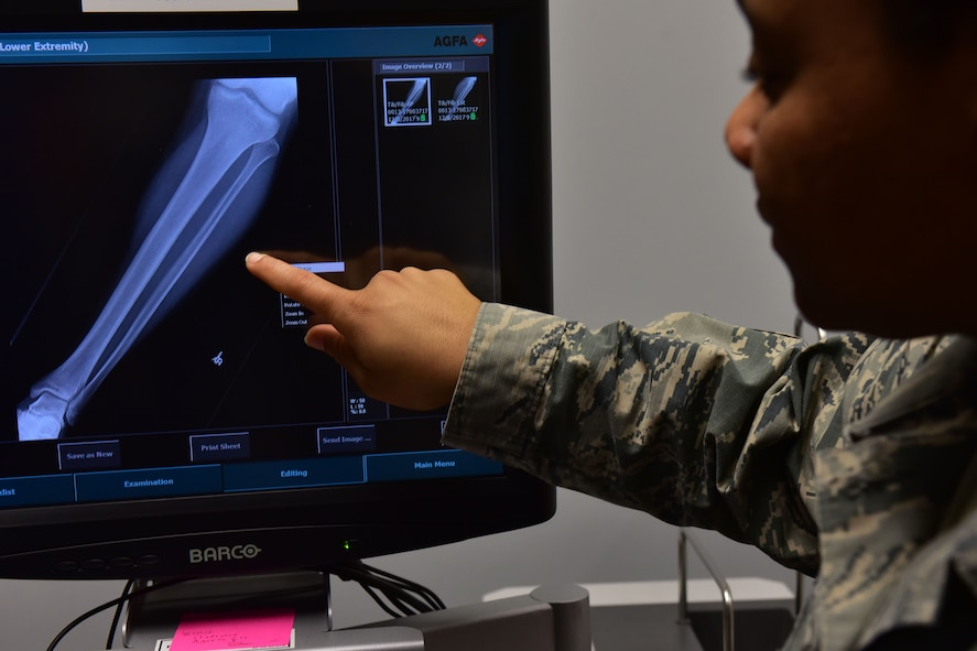 Senior Airman Akilah Hall, 19th Medical Support Squadron diagnostic imaging technologist, examines an X-ray Dec. 5, 2017, at Little Rock Air Force Base, Ark. The X-rays are taken on a X-ray cassette. The cassettes are reusable and designed to last for years . (U.S. Air Force photo by Airman 1st Class Rhett Isbell)