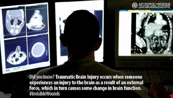 Traumatic Brain Injury (TBI) can be difficult to detect with its typical lack of physical markers. Knowing the signs and symptoms of TBI is critical and ensures Airmen can return to duty. (U.S. Air Force photo)