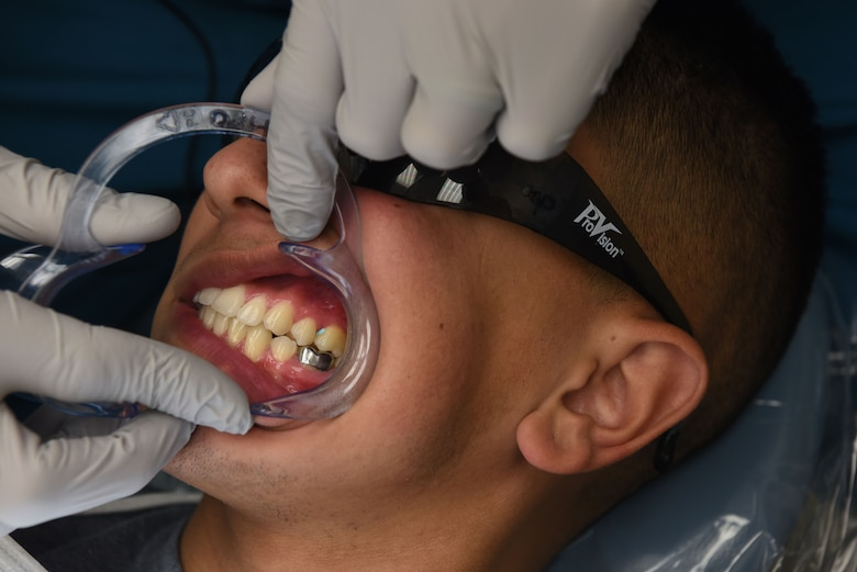 Captain Corey Cook, 90th Medical Group dentist, inspects the patients silver crown before starting the procedure of replacing the current crown with a reinforced porcelain crown at the dental clinic on F.E. Warren Air Force Base, Wyo., Dec. 19, 2017. The crown replacement provided a more natural looking tooth. The mission of the U.S. Air Force Dental Corps is to achieve superior oral health and global readiness through safe, effective and patient-centered care. (U.S. Air Force photo by Airman 1st Class Abbigayle Wagner)