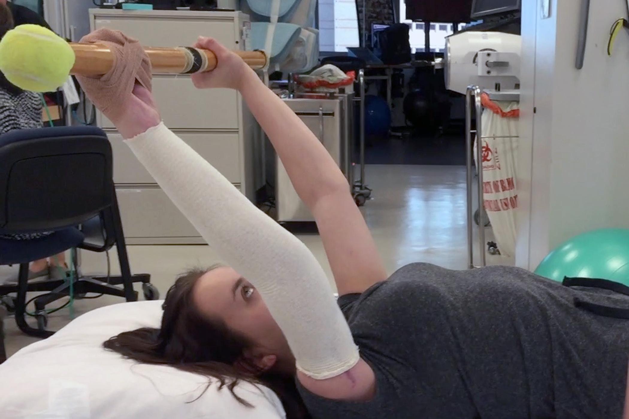 Medical Miracle Bamc Surgeons Perform Groundbreaking Arm