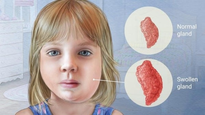 Mumps is a contagious viral infection that can cause pain and swelling in the salivary glands.