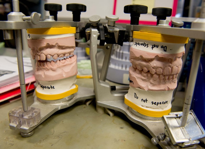 A cast of a patient's original teeth, left, sits beside a cast of his new artificial teeth at the 86th Dental Squadron on Ramstein Air Base, Germany, July 25, 2016. The 86th DS continues to search for innovative ways to fix damaged or defective dental structure in faster, safer and smarter ways. (U.S. Air Force photo by Senior Airman Elizabeth Baker)