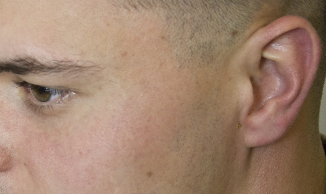 A semi-permanent acupuncture needle, or ASP, is inserted next to the ear of 2nd Lt. Paul Schroeder, a Uniformed Services University student working with the 779th Medical Group's Air Force Acupuncture and Integrative Medicine Clinic staff March 28, 2017 at Joint Base Andrews, Md. Auricular therapy is one kind of acupuncture protocol that can be used on the battlefield because the placement of the ASPs can be learned by medical professionals who don't specialize in acupuncture and the needles can remain in the ears from 3-5 days. Doing so, provides relief for patients suffering from some ailments such as anxiety, back pain, muscle stiffness and headaches. (U.S. Air Force photo by Staff Sgt. Joe Yanik)