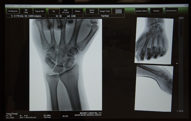 Image of the skeletal structure of a patient's hand displayed on the monitor of a mobile X-ray machine, Aug. 22, 2017, at the Orthopedic Hand Clinic, David Grant U.S. Air Force Medical Center, Travis Air force Base. Calif.  DGMC's Orthopedic and Podiatry Clinics are comprised of dedicated and compassionate professionals who specialize in the comprehensive care of patients with bone and joint disorders of the extremities. (U.S. Air Force photo/ Heide Couch)