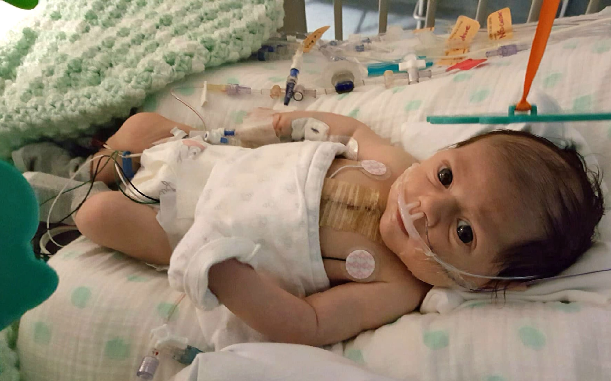 Noah Mockovciak, Team Shaw child, lies in his bed at a hospital at Charleston, S.C., after open heart surgery, circa February 2017.