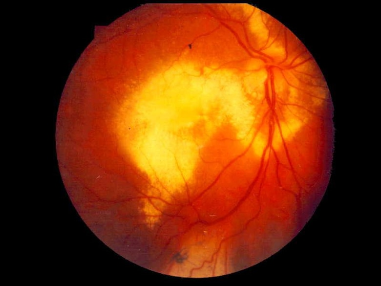This image shows deposits of cholesterol on the back of an eye affected by Coats' Disease. The rare, congenital disease, only found in about one in 100,000 people, is caused by abnormal blood vessel development behind the retina. The affected blood vessels leak blood content into the eye leading to partial or complete retinal detachment if not treated. (Courtesy photo)