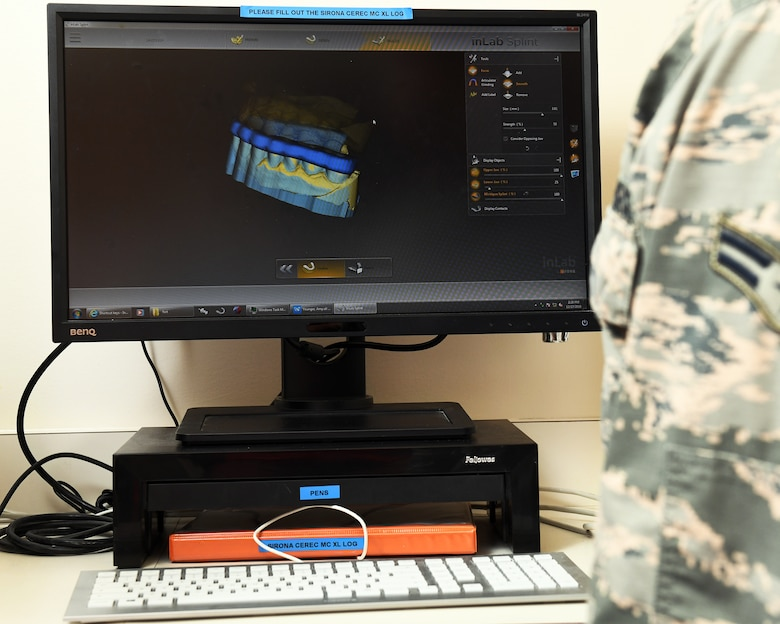 A Formlabs Form2 printer operated by Airmen with the 60th Dental Squadron prints a dental guard at Travis Air Force Base, California, Dec. 17, 2018. The printer was purchased with Squadron Innovation Funds provided by the U.S. Air Force Chief of Staff, Gen. David Goldfein. The Form2 printer is a stereolithographic 3D multiple resin printer designed for use in dentistry. The innovative printer reduces the manning hours required to produce dental prosthetics by up to 85 percent, cutting hands-on production time from three hours to 30 minutes. (U.S. Air Force photo by Louis Briscese)