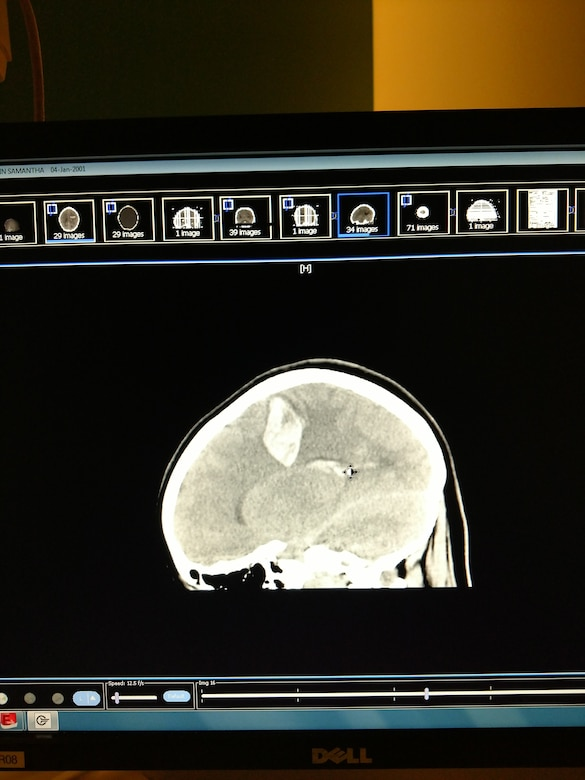 The whitish area at the top of this CT scan shows where blood pooled after an arterial venous malformation ruptured inside Samantha Pipkin's brain Feb. 2, 2017, causing a hemorrhagic stroke.  (Courtesy photo).