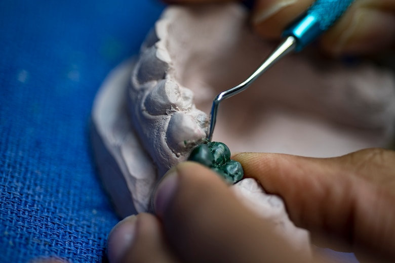U.S. Air Force Airman 1st Class Jada Rivers, 86th Dental Squadron dental laboratory technician, fabricates a tooth for an implant at the dental clinic on Ramstein Air Base, Germany, Feb. 8, 2018. On average, the base dental laboratory receives more than 250 submissions a month. (U.S. Air Force photo by Senior Airman Devin Boyer)
