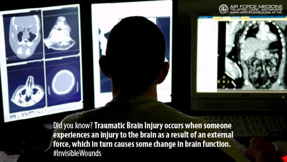 Facebook Timeline - Traumatic Brain Injuries (U.S. Air Force graphic)