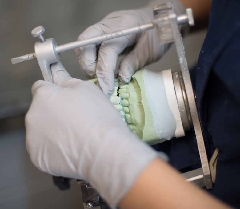 Staff Sgt. Kimberly Conklin, 2nd Dental Squadron dental laboratory NCO in-charge, finishes making a cast of a patient's teeth at Barksdale Air Force Base, La., Aug. 30, 2018. Lab technicians use casts to create crowns, retainers, night guards and more to fit the patient's teeth perfectly. (U.S. Air Force photo by Senior Airman Stuart Bright)