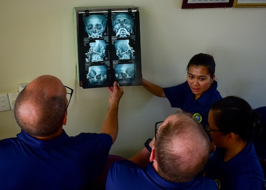 Navy medical professionals inspect a surgical candidate's three-dimensional reconstruction scan during Pacific Partnership 2018.
