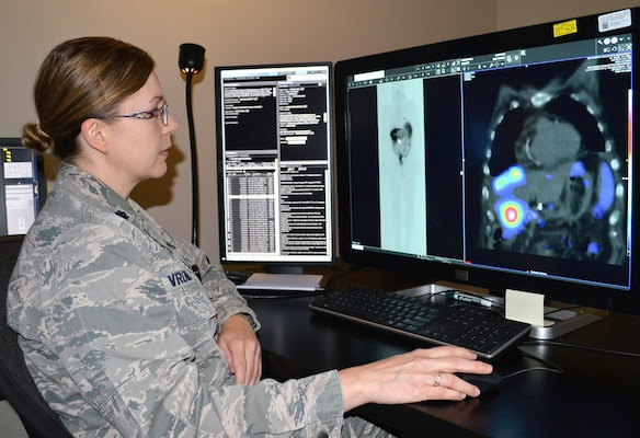 Air Force Lt. Col. Penny Vroman, Brooke Army Medical Center Nuclear Medicine Department chief, looks at scans of a patient with neuroendocrine tumors June 26, 2019 to see if the radiopharmaceutical drug is targeting the tumors. The use of lutetium Lu 177 dotatate, a radioactive medicine that binds itself to a specific part of certain tumor cells, was approved by the Food and Drug Administration in January 2018 for the treatment of somatostatin receptor-positive gastroenteropancreatic neuroendocrine tumors, or GEP-NETs, including foregut, midgut and hindgut neuroendocrine tumors in adults.