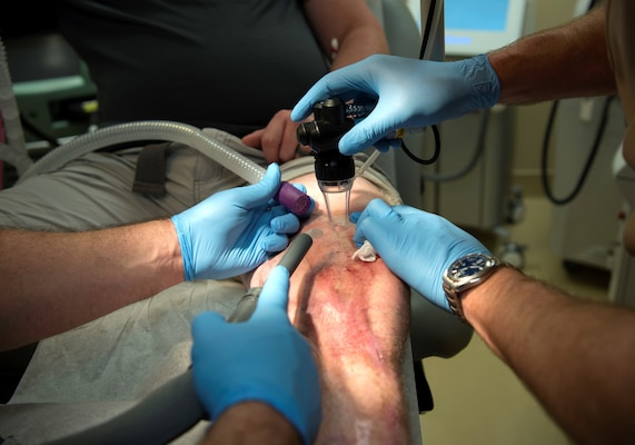 Retired Army Staff Sgt. Daniel Burgess, a wounded warrior, receives a carbon dioxide laser treatment at the MacDill Air Force Base, Florida, scar clinic Feb. 15, 2019. The wounded-warrior-focused clinic offers a variety of unique treatments for those who suffer from scarring as a result of blast injuries, burns, amputations, and other surgeries.