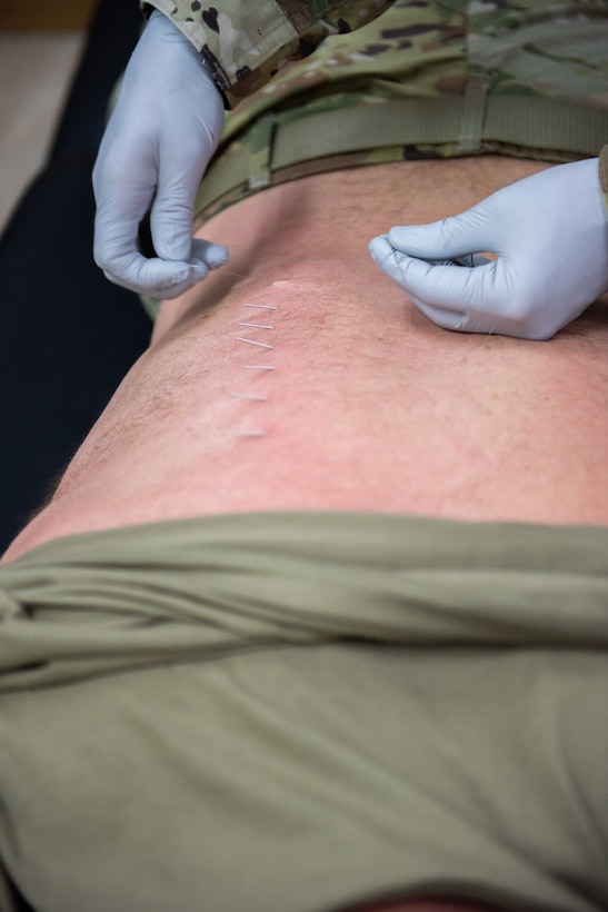 Maj. Adam Frost, 380th Expeditionary Medical Group physical therapist, removes a needle from a patients back May 17, 2019 at Al Dhafra Air Base, United Arab Emirates. Fry involves dry needling, a form of acupuncture, and cupping into his treatments – he has found both to be extremely effective at targeting trigger points, releasing muscle spasms and alleviating pain. U.S. Air Force photo by Staff Sgt. Chris Thornbury)