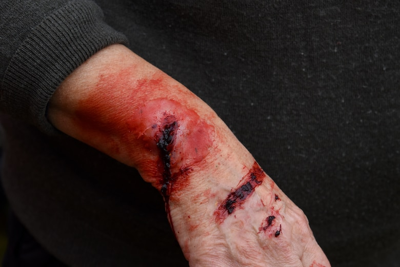 A volunteer from the Suffolk Lowlands Search and Rescue organization shows fake wound in Thetford, England, Nov. 23, 2019. Volunteers from SuLSAR worked alongside medical military personnel from Royal Air Force Lakenheath, RAF Mildenhall, and RAF Alconbury in a joint exercise. U.S. Air Force Medical Airmen participating in the exercise had the opportunity to enhance medical readiness through an interactive scenario. (U.S. Air Force photo by Airman 1st Class Rhonda Smith)