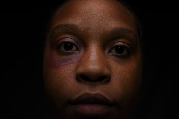 U.S. Air Force Staff Sgt. Ceaira Tinsley, 39th Air Base Wing non-commissioned officer in charge of command information, wears makeup simulating a bruise during a domestic violence awareness exercise Oct. 10, 2019, at Incirlik Air Base, Turkey. Ten Airmen from various units wore artificial scars on their faces to see what kind of reactions they would receive from their colleagues around the installation. (U.S. Air Force photo by Staff Sgt Joshua Magbanua)