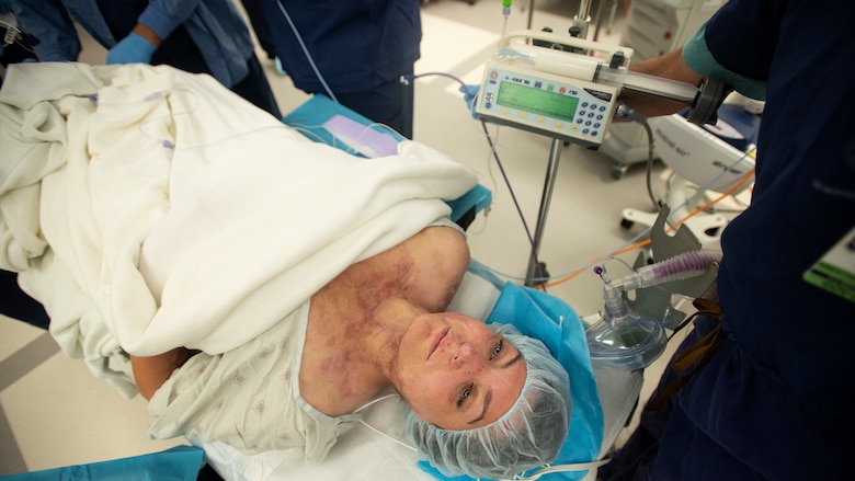 Burn scars are visible as retired U.S. Army Capt. Katie Blanchard awaits surgery