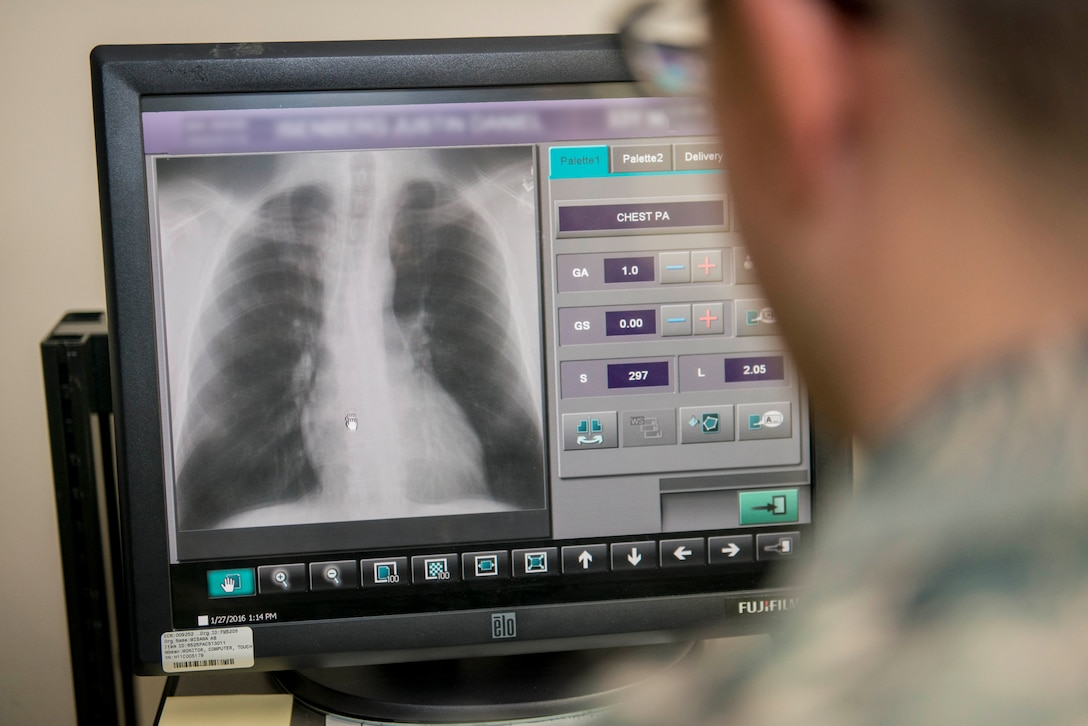 A person in a military uniform looks at an X-ray on a computer screen.