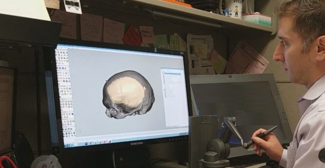Peter Liacouras, Ph.D., demonstrates computer software that allows him to manipulate and cut a custom cranial plate design