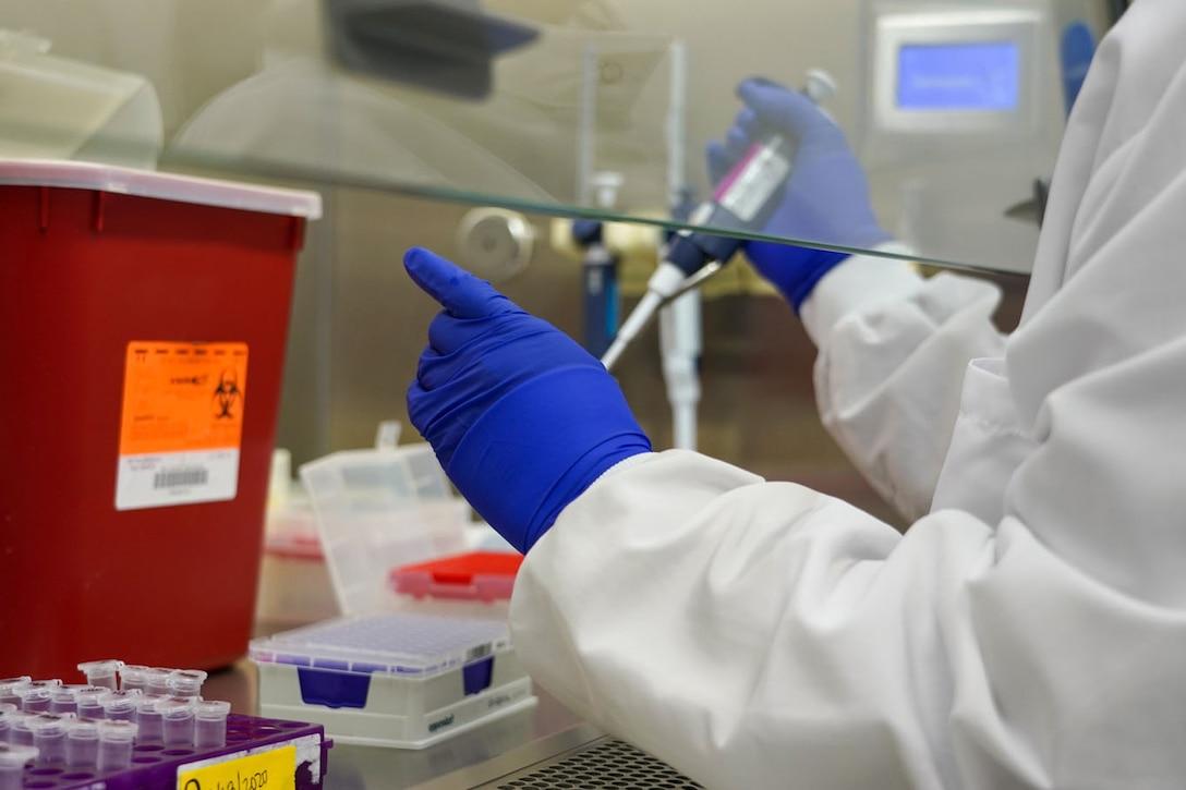 Gloved hands handle medical specimens.