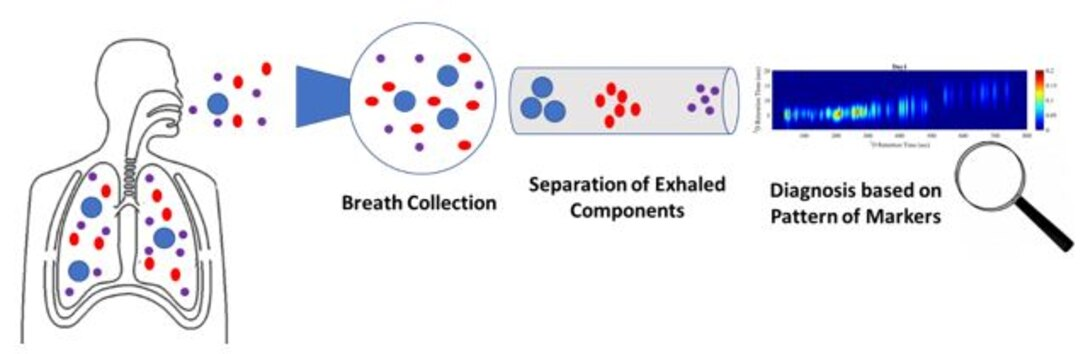 This schematic illustration shows how a disease is identified by the pattern of compounds detected in exhaled breath. Gas chromatography is an analytical technique that separates the chemical constituents of an air sample into components, with the retention time (the amount of time it takes for a given compound to pass through the chromatography column) being an identifying characteristic of each compound. (Courtesy illustration)