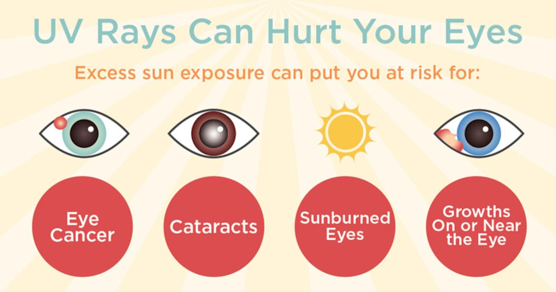 Summer is here and the importance of ultraviolet (UV) protection, especially for our eyes, cannot be overstated. UV-A penetrates easily through the skin. Although it is not as strong as UV-B, it is more prevalent and poses more of a risk to the inner layers of the skin and eyes. UV-B affects the outer layer of our skin and can result in sunburns, blistering, and possibly skin cancer. The front parts of the eye, including the cornea and conjunctiva, are the most affected by UV light. (Courtesy graphic)