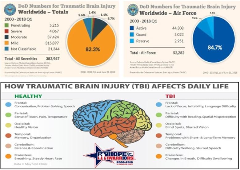 More Than a Mere Month: Traumatic Brain Injury Awareness